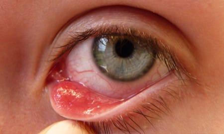 Воспаление мейбомиевых желез