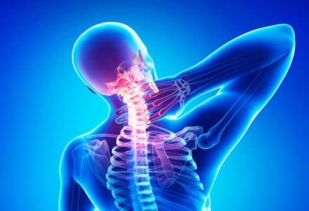 Остеохондроз шейного отдела или неврит