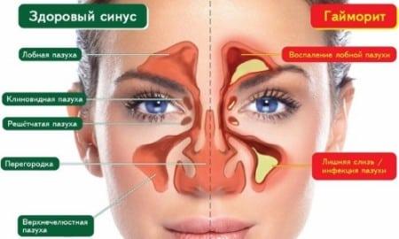 Болевой синдром при простуде