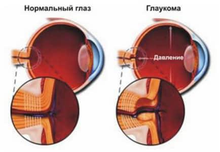 Повышенное глазное давление и глаукома