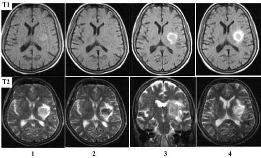 МР-томограмма при геморрагическом инсульте