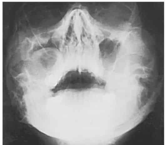 Рентгеновский снимок кисты правой верхнечелюстной пазухи