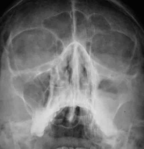 Рентгеновский снимок при левостороннем экссудативном гайморите