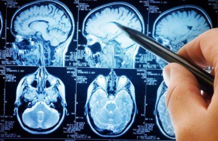 Диагностика МРТ сосудов головного мозга фото