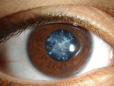 Этиология заболевания глаукомы