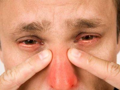 Первоначальные признаки и проявления острой формы болезни фото