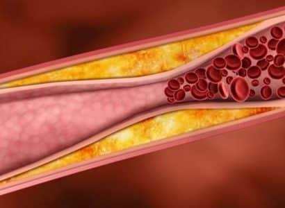 Что происходит в организме при недуге