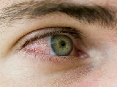 Глазные капли антисептического действия