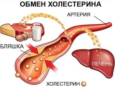 Этиология недуга