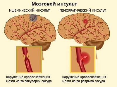 Мозговой инфаркт