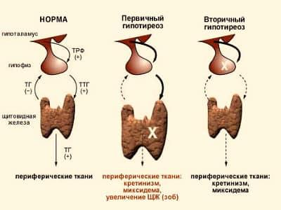 Классификация форм гипотиреоза
